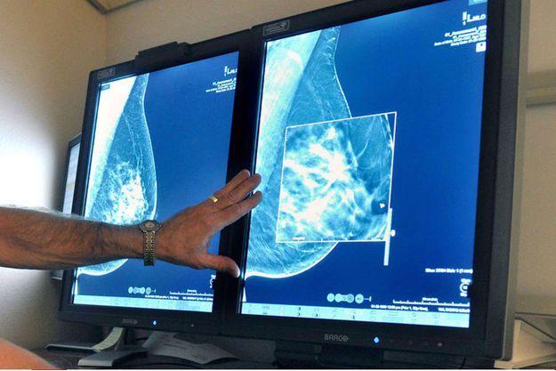 """Un radiologue compare des mammographies 2D et 3D. La technologie de l'imagerie permet aujourd'hui de détecter de tous petits """"cancers""""."""
