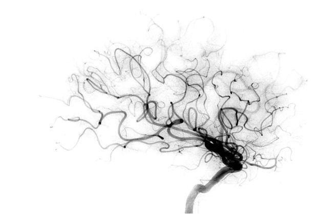 Une nouvelle ère s'ouvre dans la prise en charge de l'AVC grâce à une technique de capture du caillot dans le cerveau: la thrombectomie mécanique.