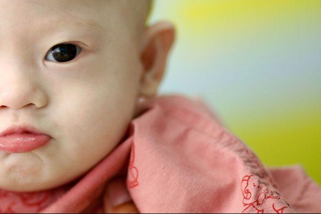 Le petit Gammy à l'hôpital de Chonburi, le 3 août dernier.