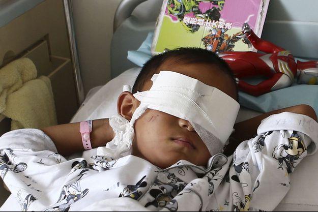 Le petit garçon a été kidnappé et drogué. Il ne sait pas encore qu'il restera aveugle.