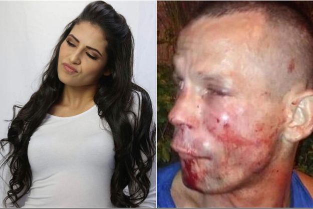 A gauche, Polyana Viana, à droite, le voleur couvert de sang.