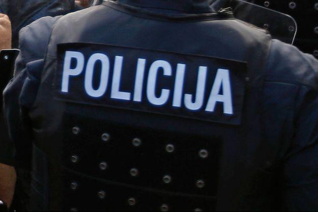 La police slovène a arrêté une femme de 21 ans qui s'est délibérément tranché la main afin de toucher des primes d'assurance (Image d'illustration)
