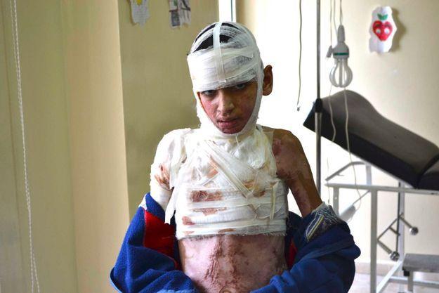 Début février. Omar, 13 ans, dans le dispensaire 24/24 de Tripoli, au Liban, où il se rend chaque semaine pour faire changer ses pansements.