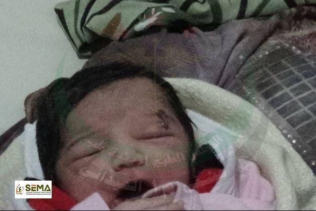 Une capture vidéo de la petite Amel, née avec un éclat d'obus à la tête.