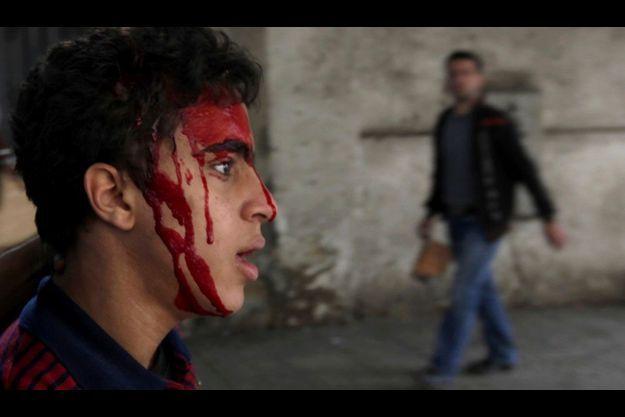 Un manifestant égyptien blessé à la tête, au Caire.