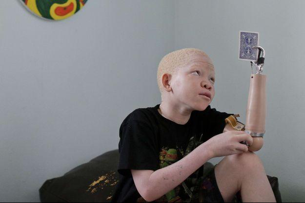Mwigulu, 12 ans, a reçu une prothèse pour remplacer son bras gauche.
