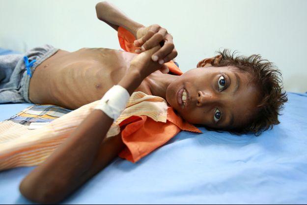 Imran Faraj, 8 ans, souffre de malnutrition, le 13 juin 2017.