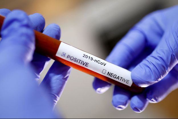 Un échantillon testé pour le coronavirus.