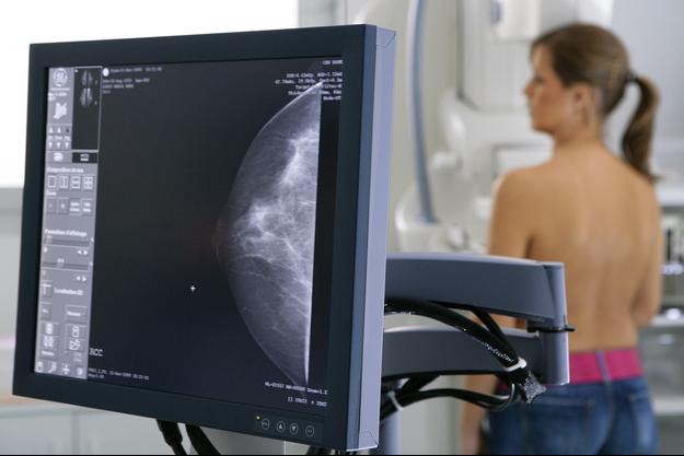 Mammographie de dépistage : deux nouvelles études contestent son intérêt