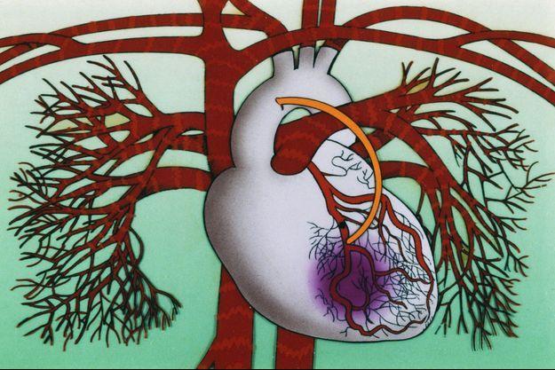 Le TAVI : quand la chirurgie aortique est trop risquée