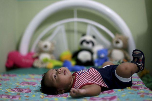 Le virus Zika provoquerait des microcéphalie, malformation congénitale dont souffrent les enfants nés avec une tête et un cerveau anormalement petits.