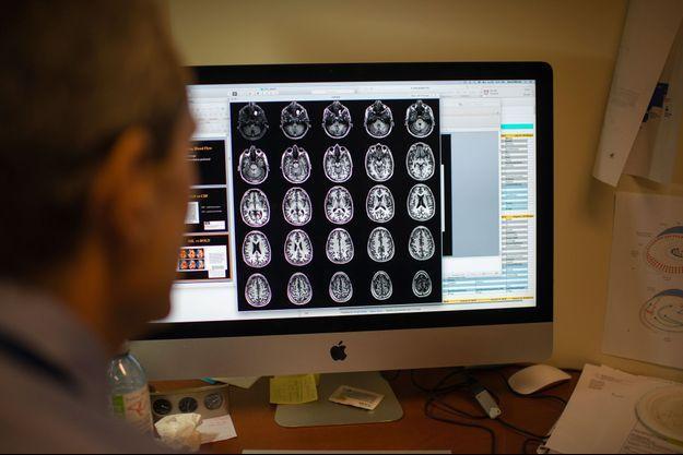 Illustration maladie d'Alzheimer