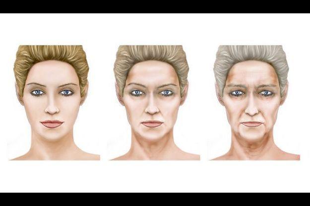 A 30 ans les contours nets dessinent un ovale parfait. A la cinquantaine les premières altérations de volume donnent un air fatigué. A partir de 70 ans, l'affaissement des tissus cutanés, graisseux et musculaires vieillit la physionomie.