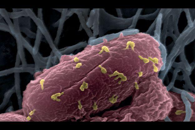 Ces phages, ici en jaune, étudiés à l'Institut Pasteur, vont venir à bout d'une bactérie. Photo grossie 50 000 fois.