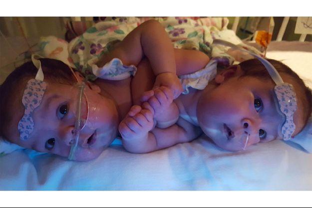 Scarlett et Savannah avant l'opération de séparation
