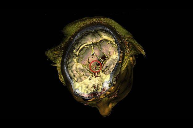 Scanner 3D Volume Rendering d'un anévrisme, par le Dr Rodolphe Gombergh.