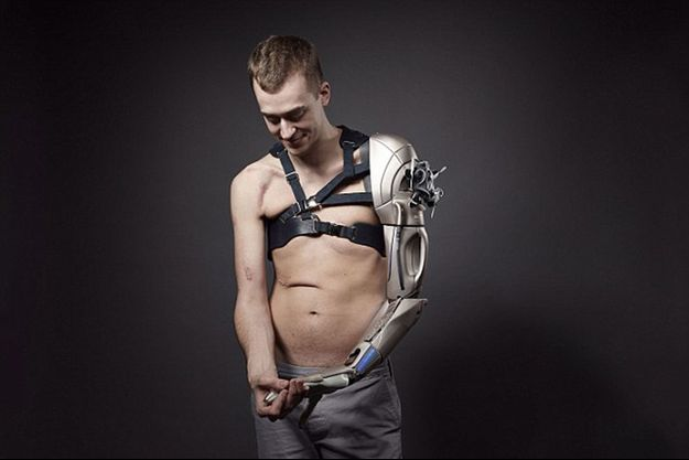James Young et son bras bionique