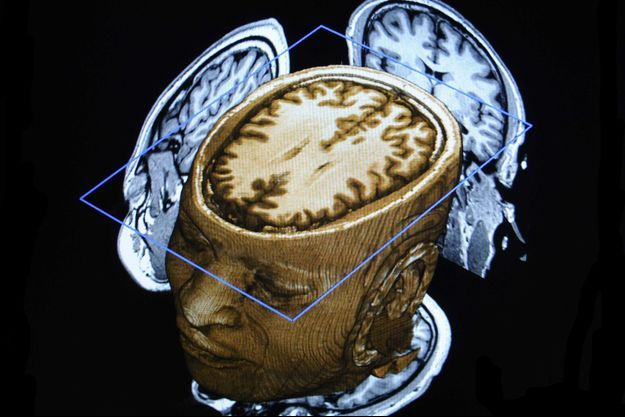 Les neurones du temps sont situés dans l'hippocampe, sous la surface du cortex cérebral.