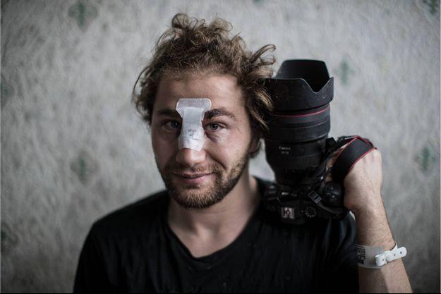 Ameer al-Halbi, photographe indépendant, grièvement blessé lors d'une charge policière samedi 28 novembre.