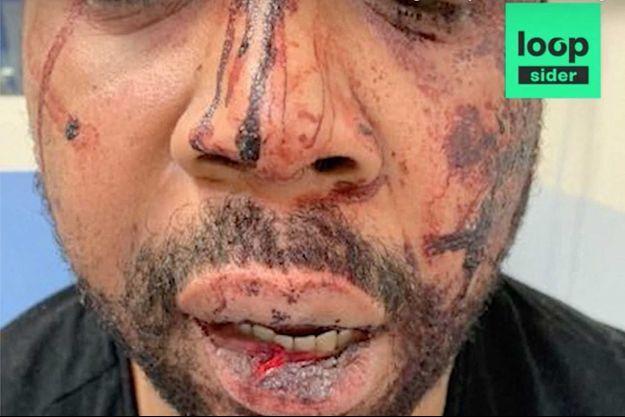 Michel Zecler après avoir été roué de coups par des policiers.