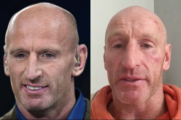 Gareth Thomas, avant et après l'agression.
