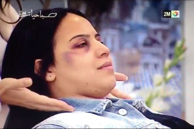 La séance de maquillage à destination des femmes battues qui a fait polémique.