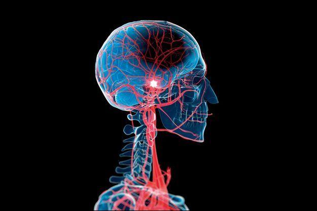 Ce prototype imaginé par deux ingénieurs américains se pilote à l'aide d'un aimant à travers le tortueux labyrinthe cérébral.