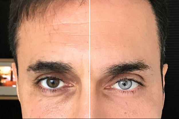 Opération « brun vers bleu ». Sur son site, le chirurgien Francis Ferrari publie souvent les photos de ses patients, avant et après l'intervention.