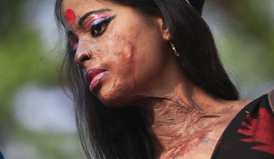 Hasina, une jeune survivante d'une attaque à l'acide, prend part à un rassemblement de sensibilisation sur les violences faites aux femmes à Dhaka, au Bangladesh, à l'occasion de la Journée internationale de la femme.