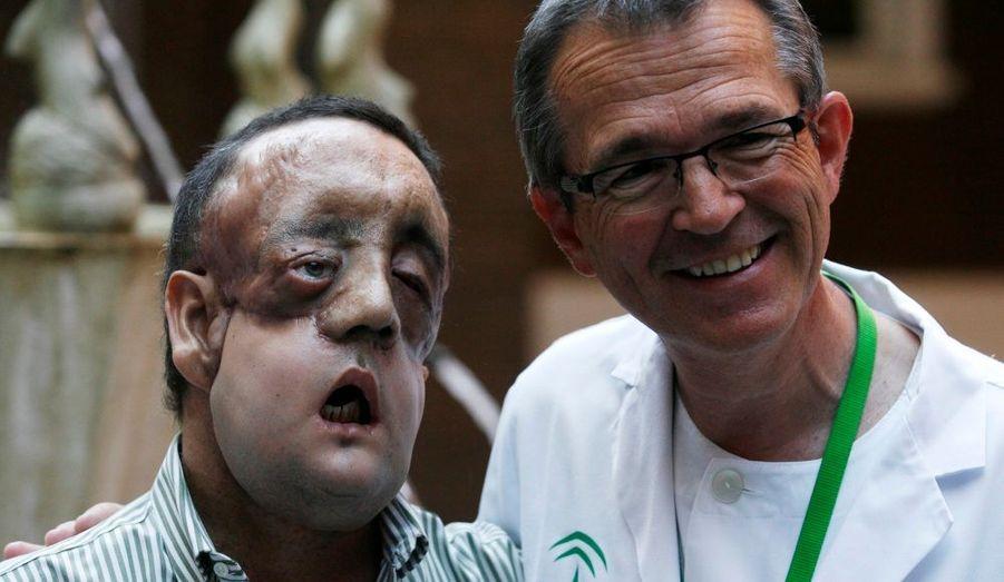 Rafael, un homme espagnol, est une des premières personne au monde à avoir reçu une greffe partielle de visage. En janvier, les chirurgiens lui ont remplacé les deux tiers du bas du visage afin de rémédier à des malformations dues à une maladie congénitale. Lors de sa première apparition en public, Rafael a tenu à remercier la famille du donneur et les médecins qui se sont occupés de lui.