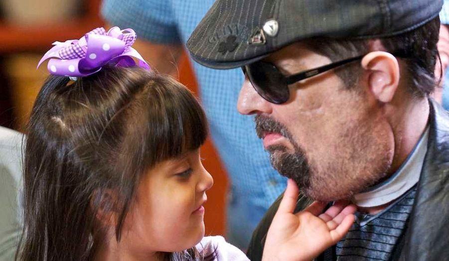 """Dallas Wiens, le premier Américain à avoir bénéficié d'une greffe totale du visage, a fait sa première apparition publique lundi, se déclarant éternellement reconnaissant pour la chance qu'il avait eue. """"Je ne pourrai jamais exprimer la portée de ce qui a été fait, de ce qu'on m'a donné"""", a-t-il déclaré. Quand elle l'a vu, sa fille de 3 ans, Scarlett, lui a dit : """"Comme tu es beau papa !"""" La plus belle preuve de réussite."""