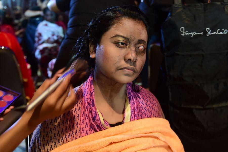 Des victimes d'attaques à l'acide ont défilé à Dhaka, au Bangladesh, le 7 mars 2017.