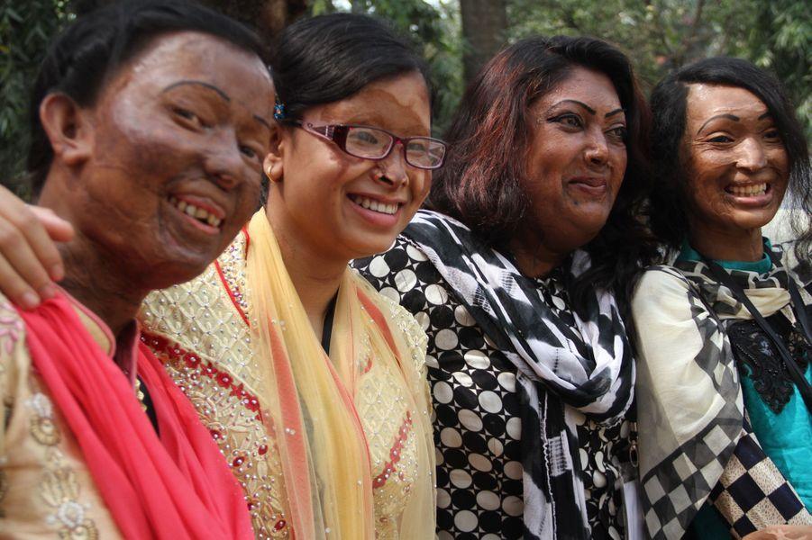 Au Bangladesh, une conférence pour les victimes d'attaques à l'acide