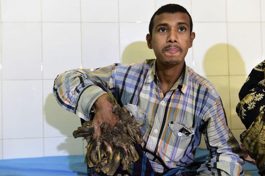 Abul l'homme arbre sera bientôt opéré