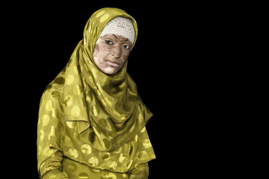 En un siècle, le Bangladesh aurait connu plus de 3.000 attaques à l'acide. La plupart des victimes sont des femmes ou des petites filles, souvent mineures. La cause est parfois une déception amoureuse ou un différend au sein même de la famille ou entre voisins. Le photographe danois Ken Hermann a rencontré certaines de ces victimes, au sein de l'Acid Survivors Foundation (ASF,http://www.acidsurvivors.org/), afin d'interpeller l'opinion sur ces attaques dont les victimes ne se remettent jamais, et dont les responsables sont rarement punis par la loi.Cette étudiante a été brûlée par son mari après une dispute conjugale le 19 février 2008. L'enquête traîne toujours.