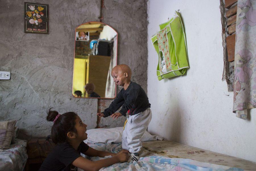 """Franco Villavicencio, l'""""enfant-vieillard"""" d'Argentine"""