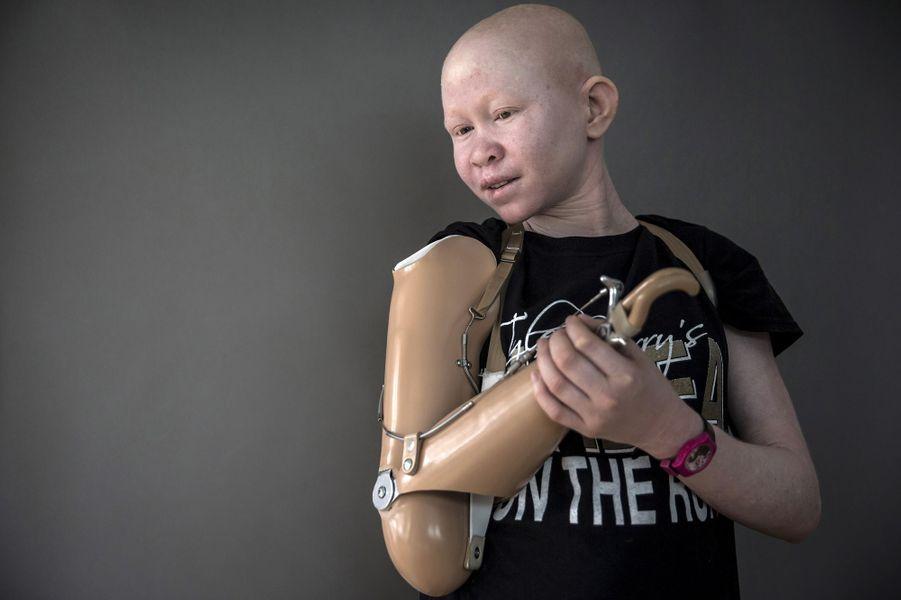 Pendo Sengerema, 15 ans, a eu le bras droit coupé