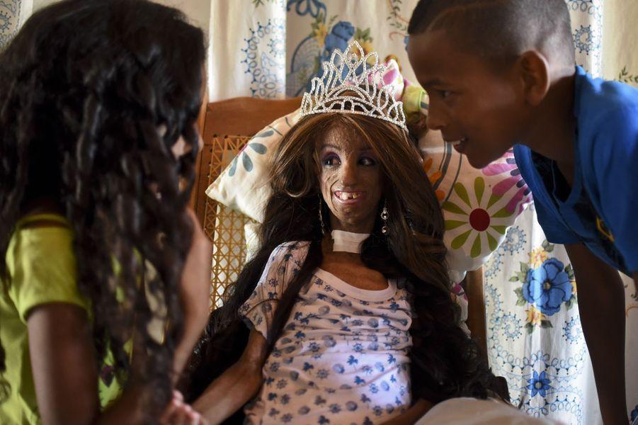 Magali, atteinte de progeria, fête son 15ème anniversaire