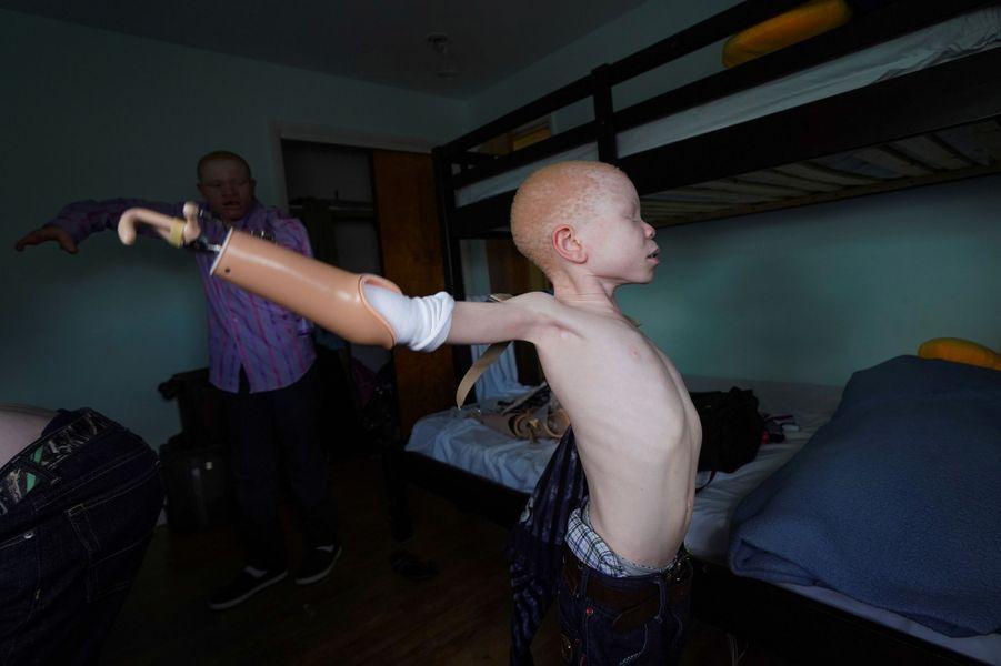 Baraka, 7 ans, et sa prothèse de bras.