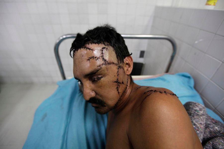 Le photographe de Reuters, Jorge Cabrera, a suivi une patrouille de police à San Pedro Sula. Les rues que la nuit transforme en abattoirs, les urgences débordée où échouent les plus chanceux, la morgue vétuste saturée de cadavres: le reportage de Jorge Cabrera est une plongée au coeur de l'horreur. La deuxième ville du Honduras, a détrôné Ciudad Juarez, au Mexique, pour décrocher en 2011 le titre de cité la plus meurtrière du monde. Et, depuis deux ans,San Pedro Sula n'a fait qu'accroître son avance. Le taux d'homicides atteint désormais 169 meurtres par tranche de 100 000 habitants. Mais c'est le pays tout entier qui est ravagé par la violence. Dans la capitale, Tegucigalpa, le maire, Ricardo Alvarez, incapable d'enrayer cette épidémie sanglante, en est réduit à payer les funérailles des plus pauvres, enterrés jusqu'alors dans des sacs poubelles.