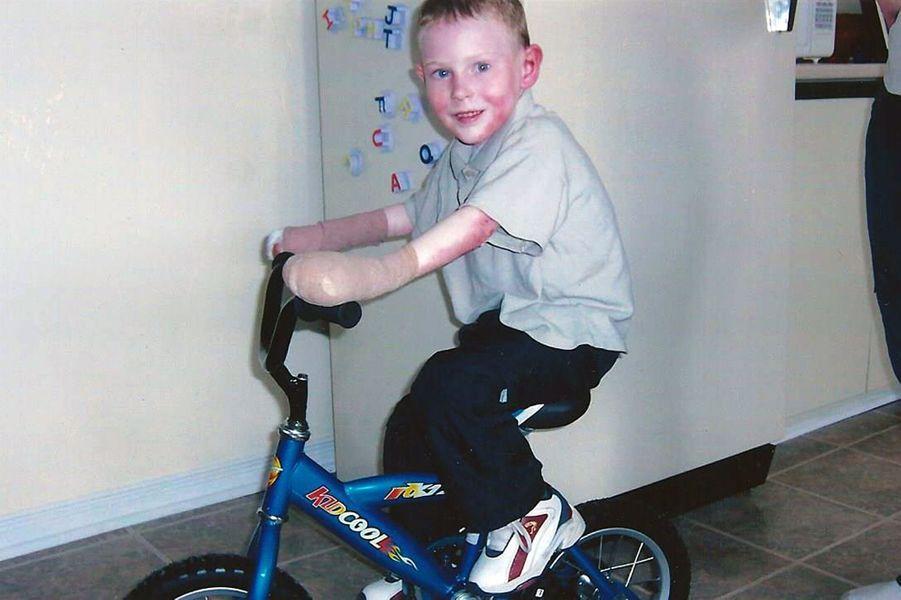 Jonathan, le courage de l'enfant papillon qui souffre d'épidermolyse bulleuse