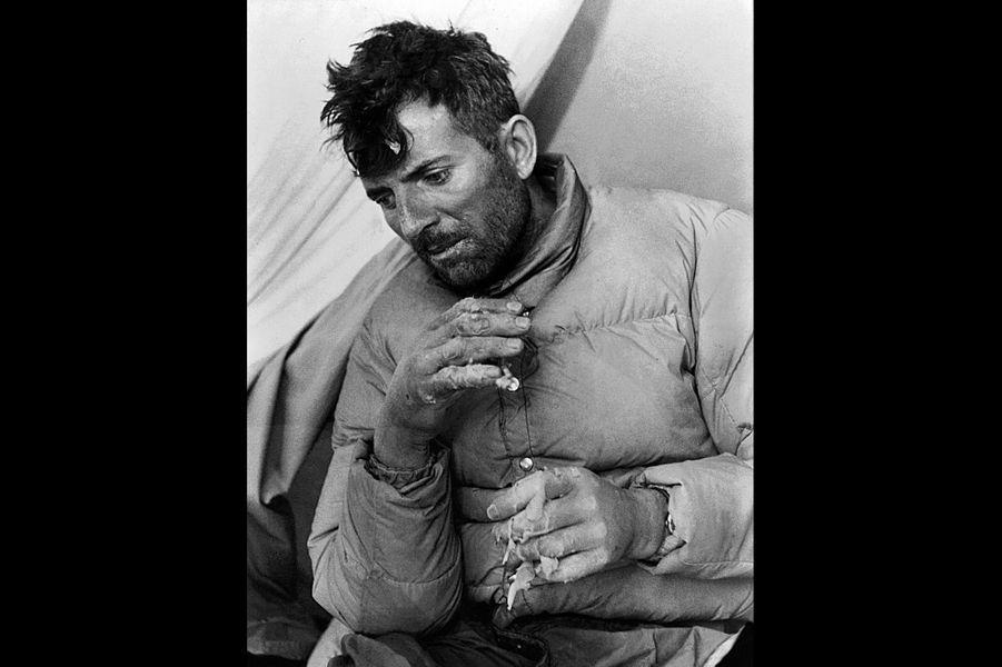 """Le premier """"huit mille"""" jamais vaincu dans l'histoire de l'humanité : Maurice Herzog sous une tente après sa victoire, visage épuisé, des lambeaux de peaux se détachant de ses mains gelées."""