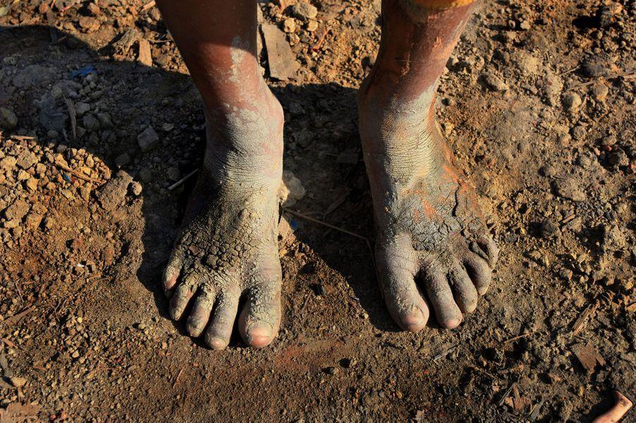 La chair à vif des travailleurs du Bangladesh