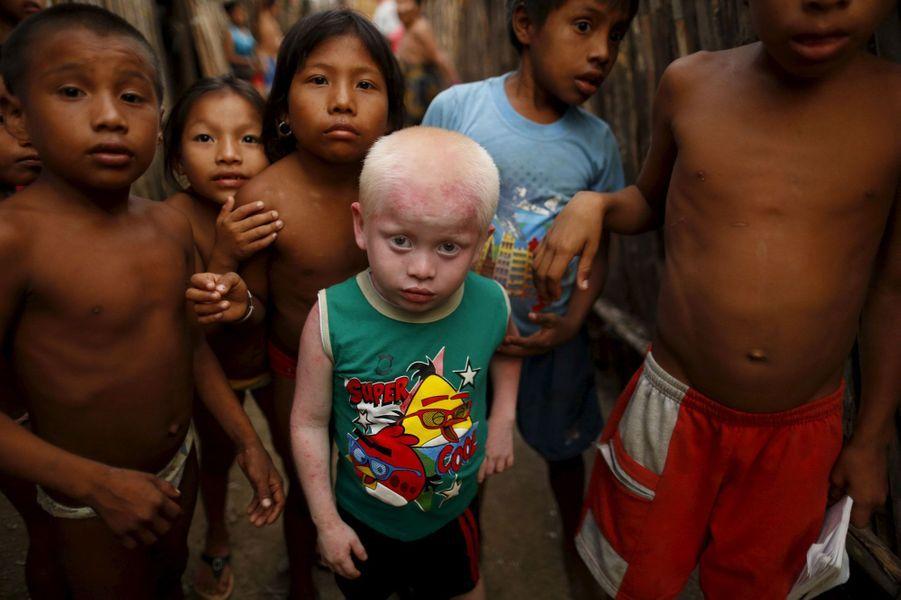 La moitié des albinos de la région de Guna ont contracté un cancer de la peau.