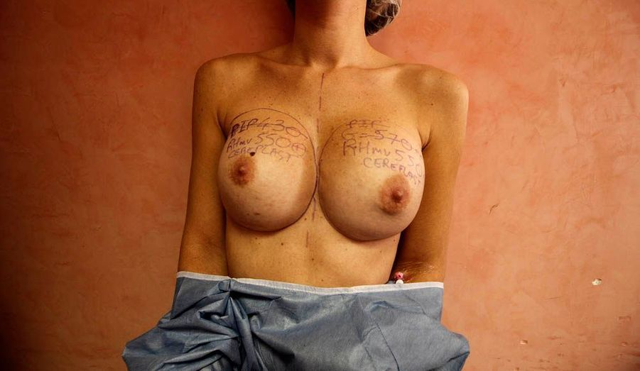 La poitrine d'une patiente anotée avant l'explantation par le chirurgien plastique Denis Boucq de ses implants mammaires PIP, dans une clinique de Nice.