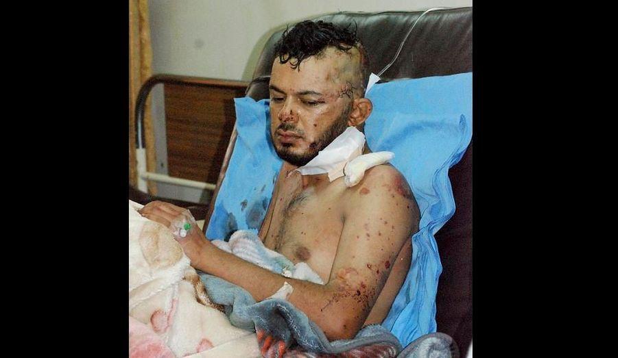 Deux bombes ont explosé ce matin à Kut en Irak, à 150 kilomètres au sud-est de Bagdad. L'explosion a fait 12 morts et 55 blessés, dont cet homme, immédiatement pris en charge par un hôpital.