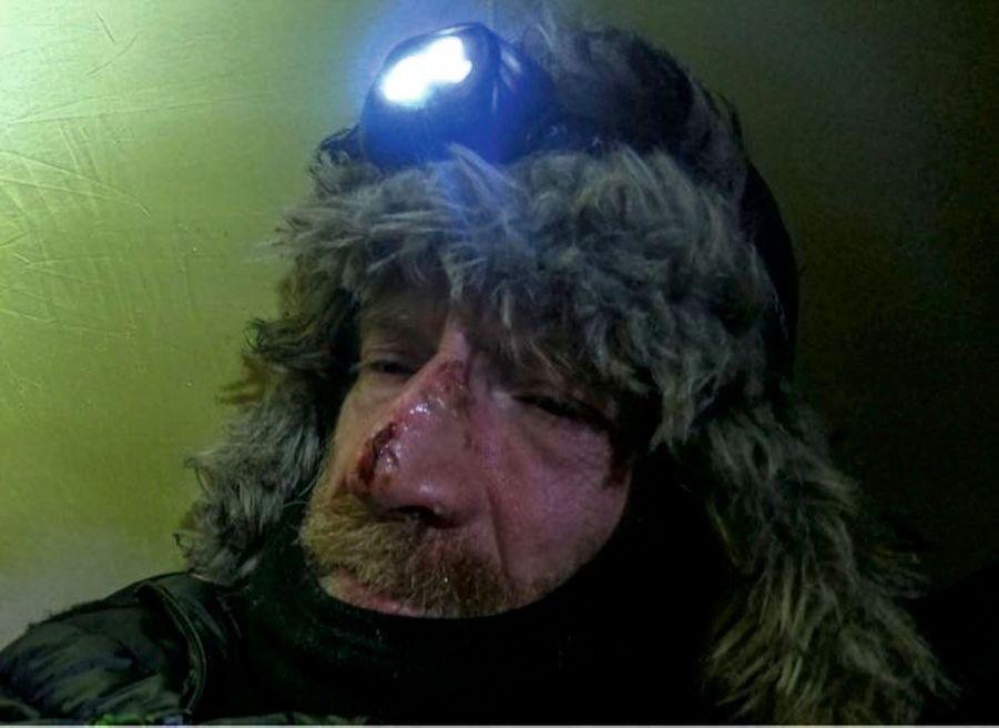 Sur le nez de Borge, une plaie causée par le gel. Durant leur séjour, la température est descendue à - 40 °C.