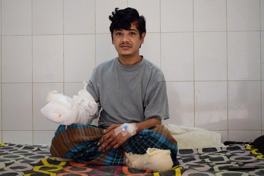 "Abul Bajandar, surnommé ""l'homme arbre"", a été opéré."