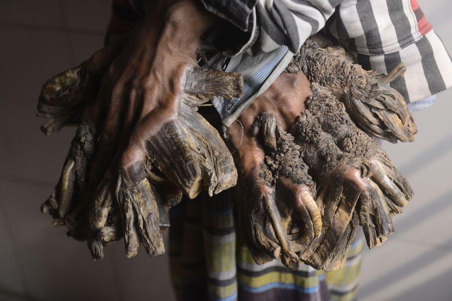 """Abul Bajandar, surnommé """"l'homme arbre"""", avant ses opérations."""