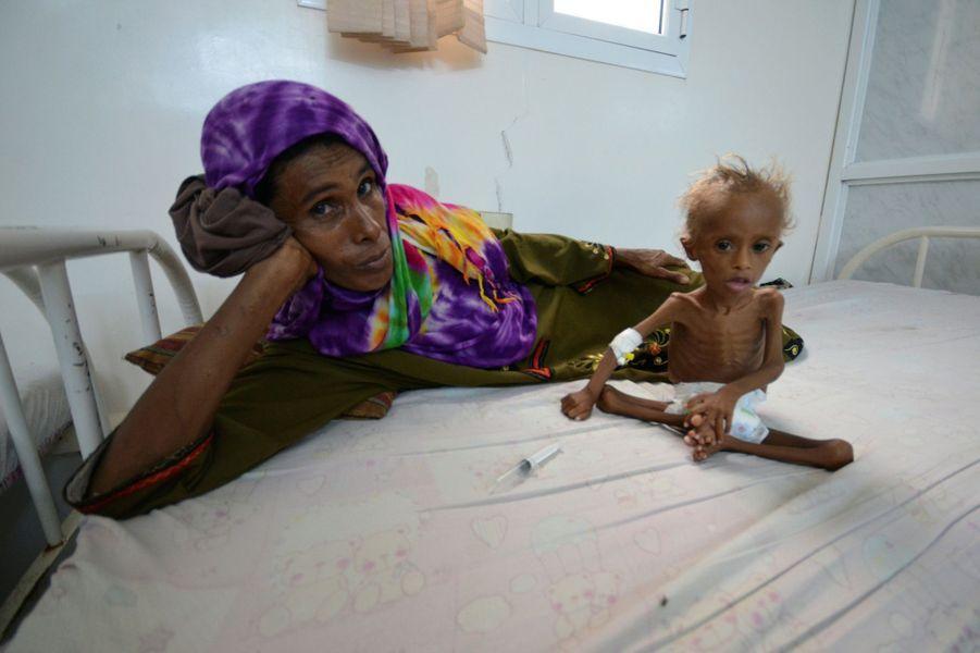 Un enfant yéménite malnutri photographié dans un hôpital deHoudieda, le 9 septembre 2016.